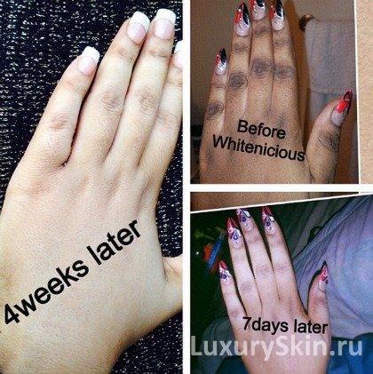 Как в домашних условиях отбелить кожу на руках от 12